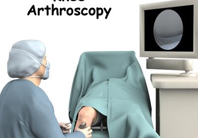 SPH Kembangkan Operasi Arthroscopy Untuk Mengatasi Masalah Sendi