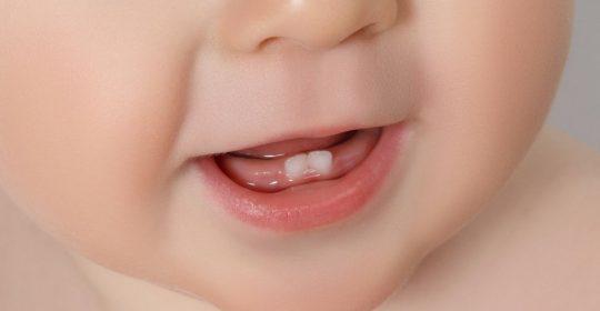 Cara Menstimulasi Pertumbuhan Gigi si Kecil
